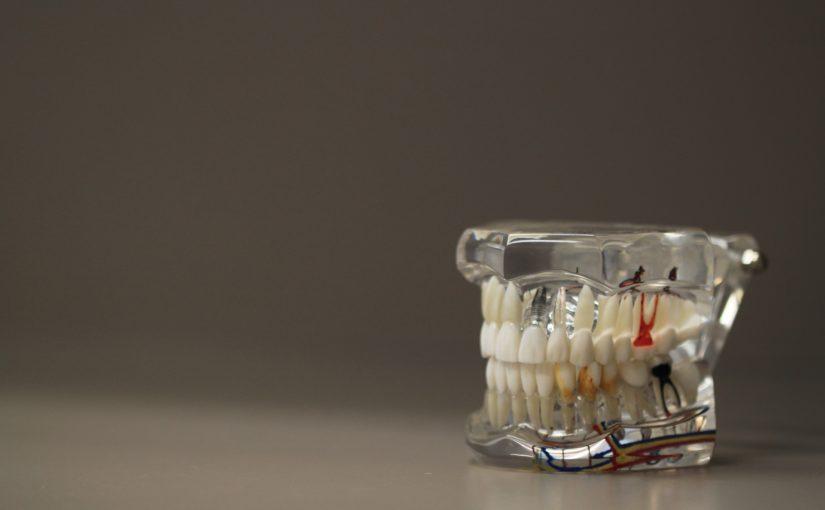 Zła sposób żywienia się to większe ubytki w jamie ustnej oraz również ich utratę